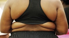 US Obesity Rates Rising Among Black Women